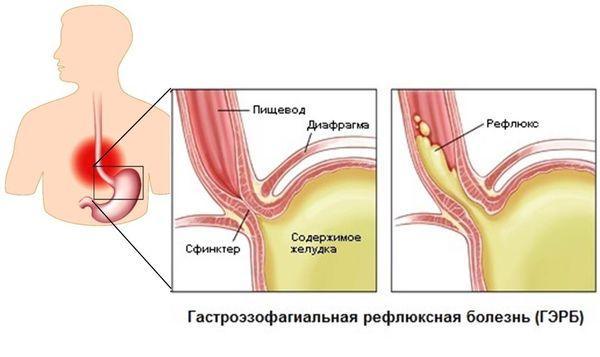 Рефлюксная болезнь