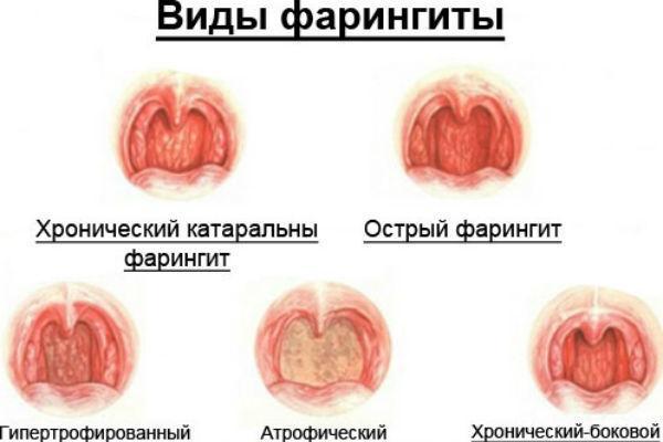 виды фарингита