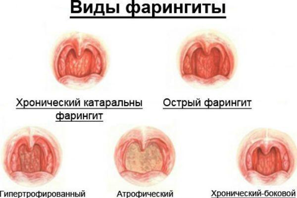 виды фарингитов