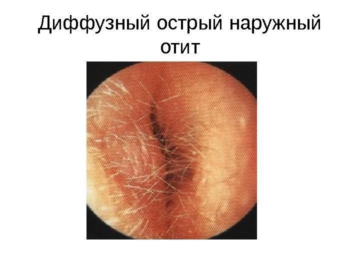 Диффузный наружный отит
