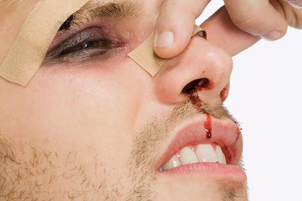 травма носа у мужчины