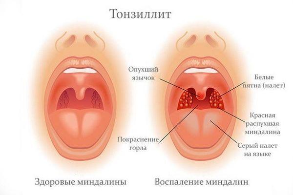 тонзиллит и красное горло