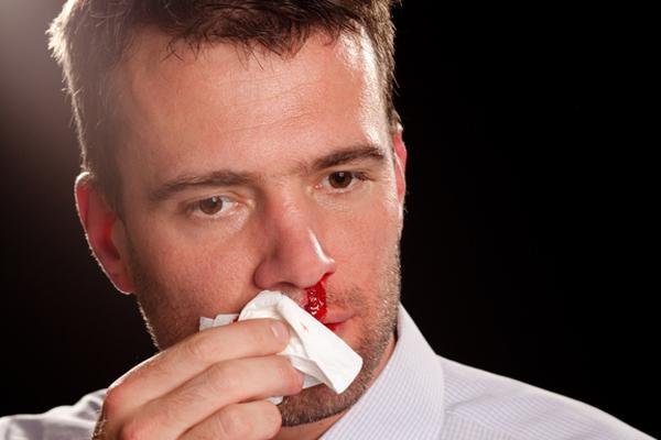 кровотечение носа