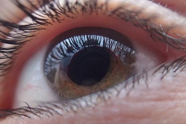 глаукома у девушки