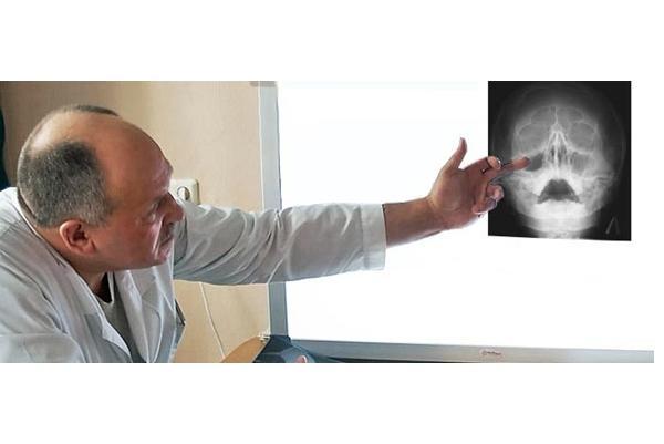 врач осматривает снимок рентгена носа