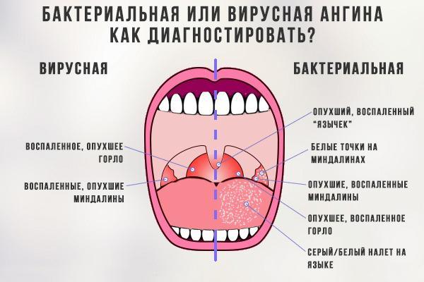 различие вирусной и бактериальной ангины