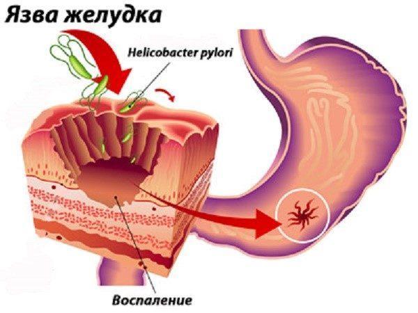 схема язвы желудка