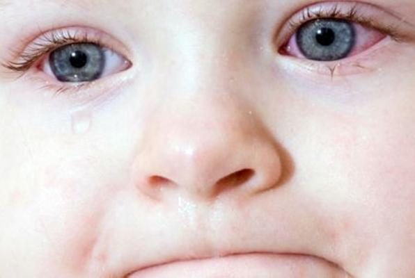 Возможные причины раздражений и покраснений