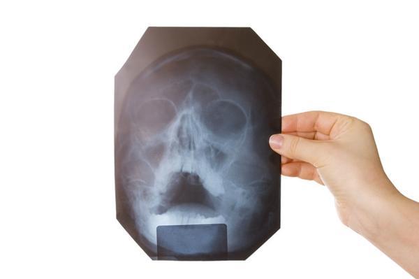 врач держит рентген пазух носа