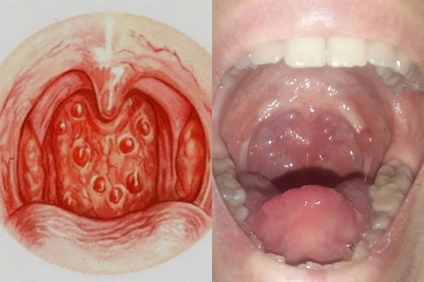 симптомы герпетического фарингита