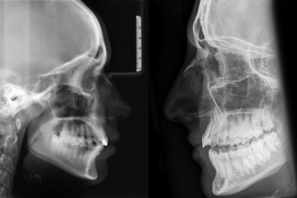 снимок рентгена носа