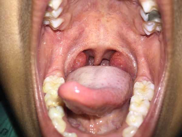 болезнь ротовой полости