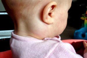 Какие антибиотики при воспалении лимфоузлов на шее можно принимать взрослым и детям?