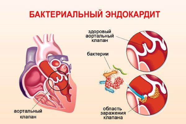 бактериальный эндокардит