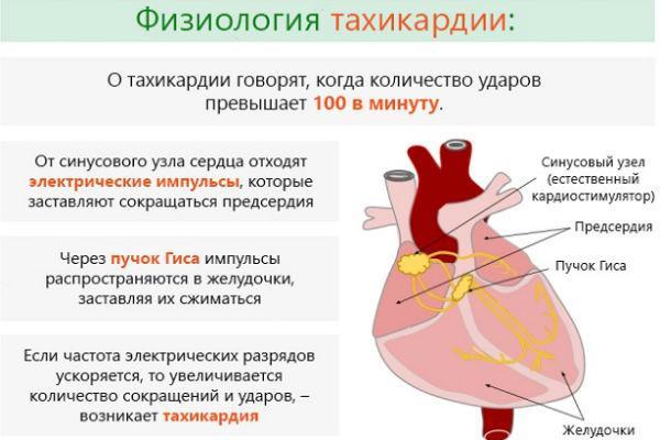 особенности тахикардии