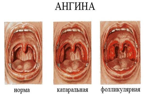 ангина и ее лечение