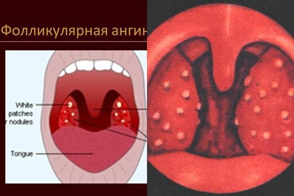 внешний вид горла при фолликулярной ангине