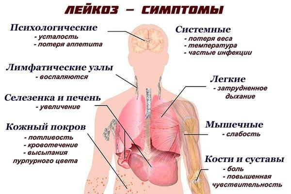 Острый лейкоз