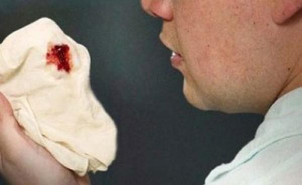 Появление кашля с кровью
