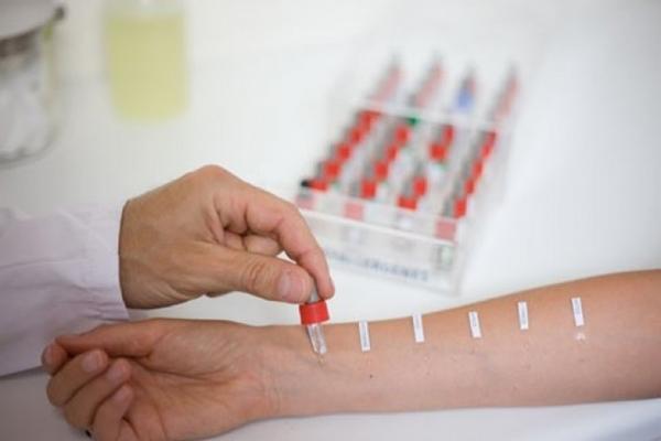 Иммуноферментный анализ на аллергены