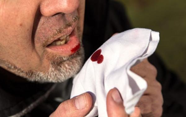 О чем говорит кровь в мокроте при отхаркивании